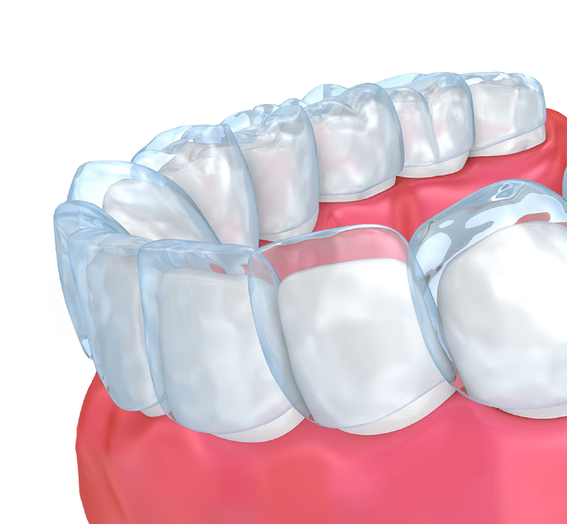 Clear aligners covering a lower arch of teeth