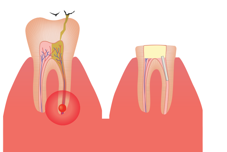 Comparison of infected and uninfected teeth