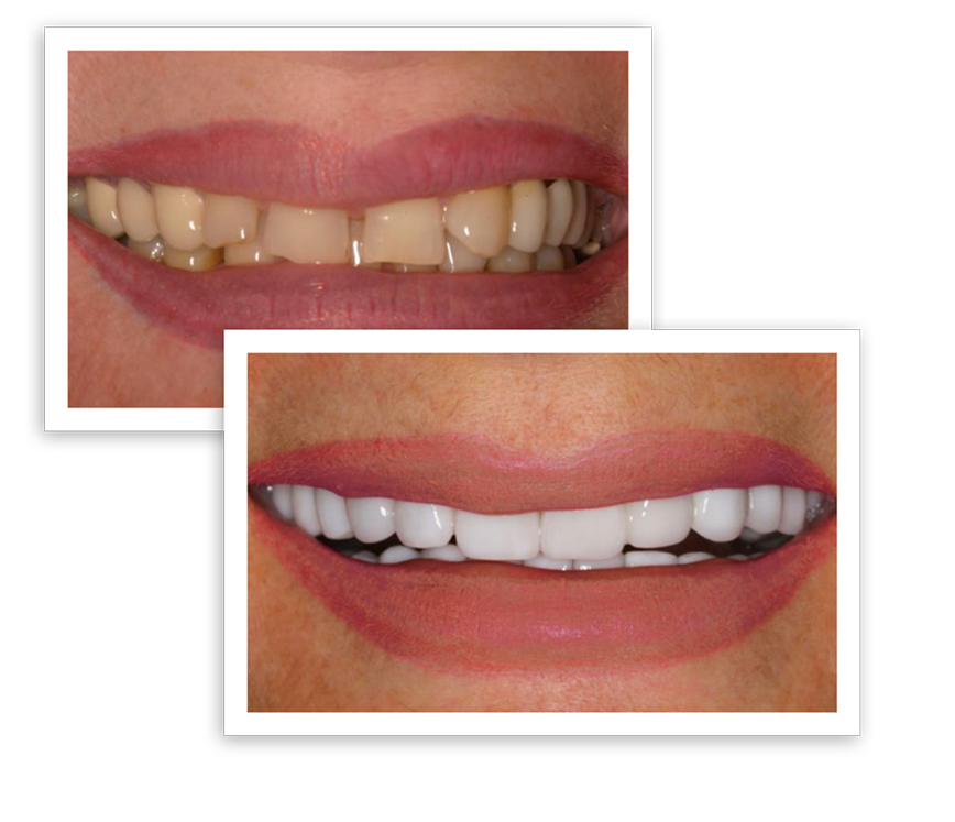Smile Makeover - Indianapolis, IN - North Meridian Dental
