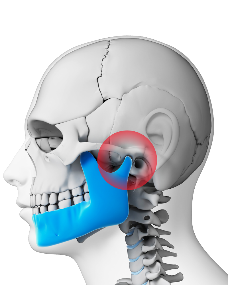 Reduce Tmj Pain With A Mouth Guard Staten Island Ny