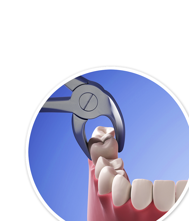 Illustration of tooth being extracted