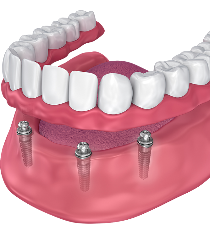 a full set of dentures supported by implants