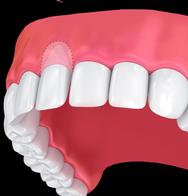 Gum grafting illustration