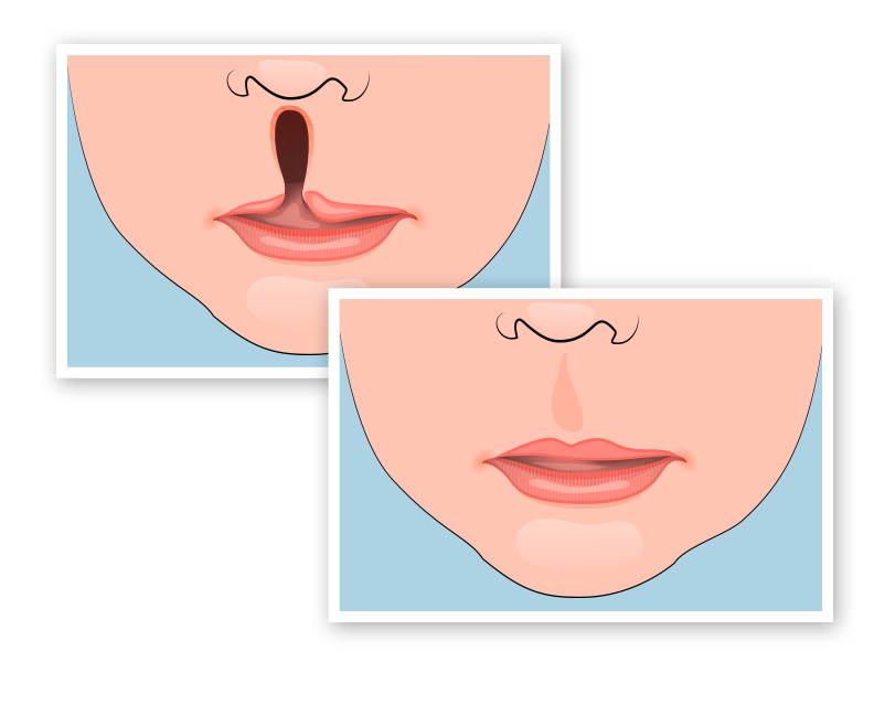 before and after illustration of cleft lip surgery
