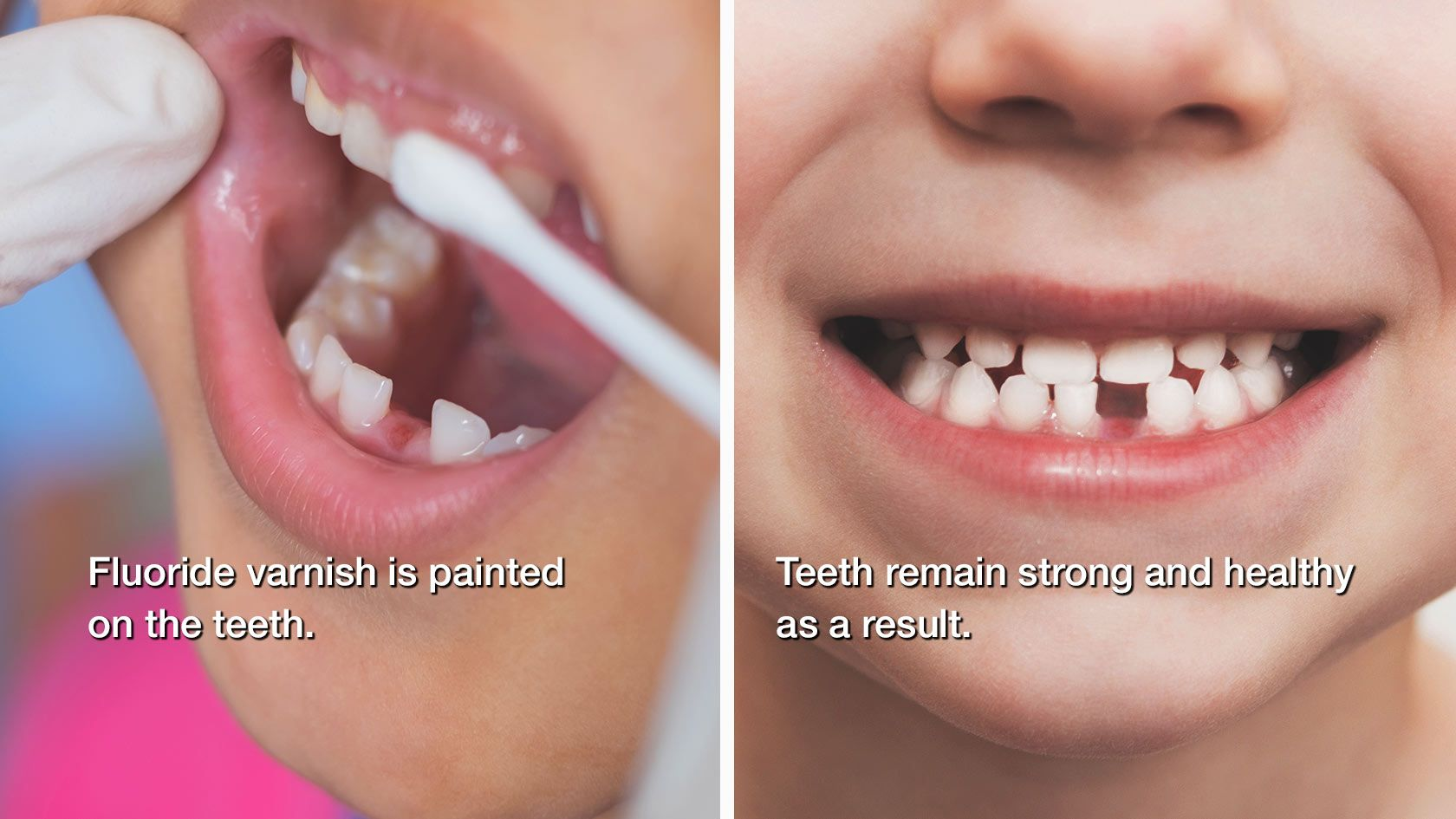 Child with missing teeth smiling as fluoride is applied to their teeth