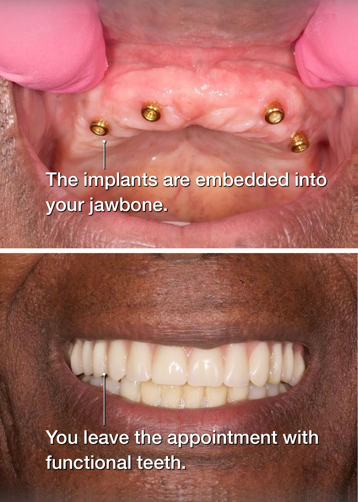 before and after of Teeth in a Day