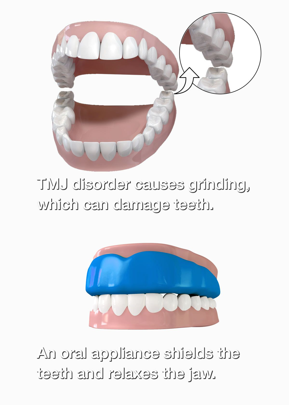 Before and after oral appliance therapy