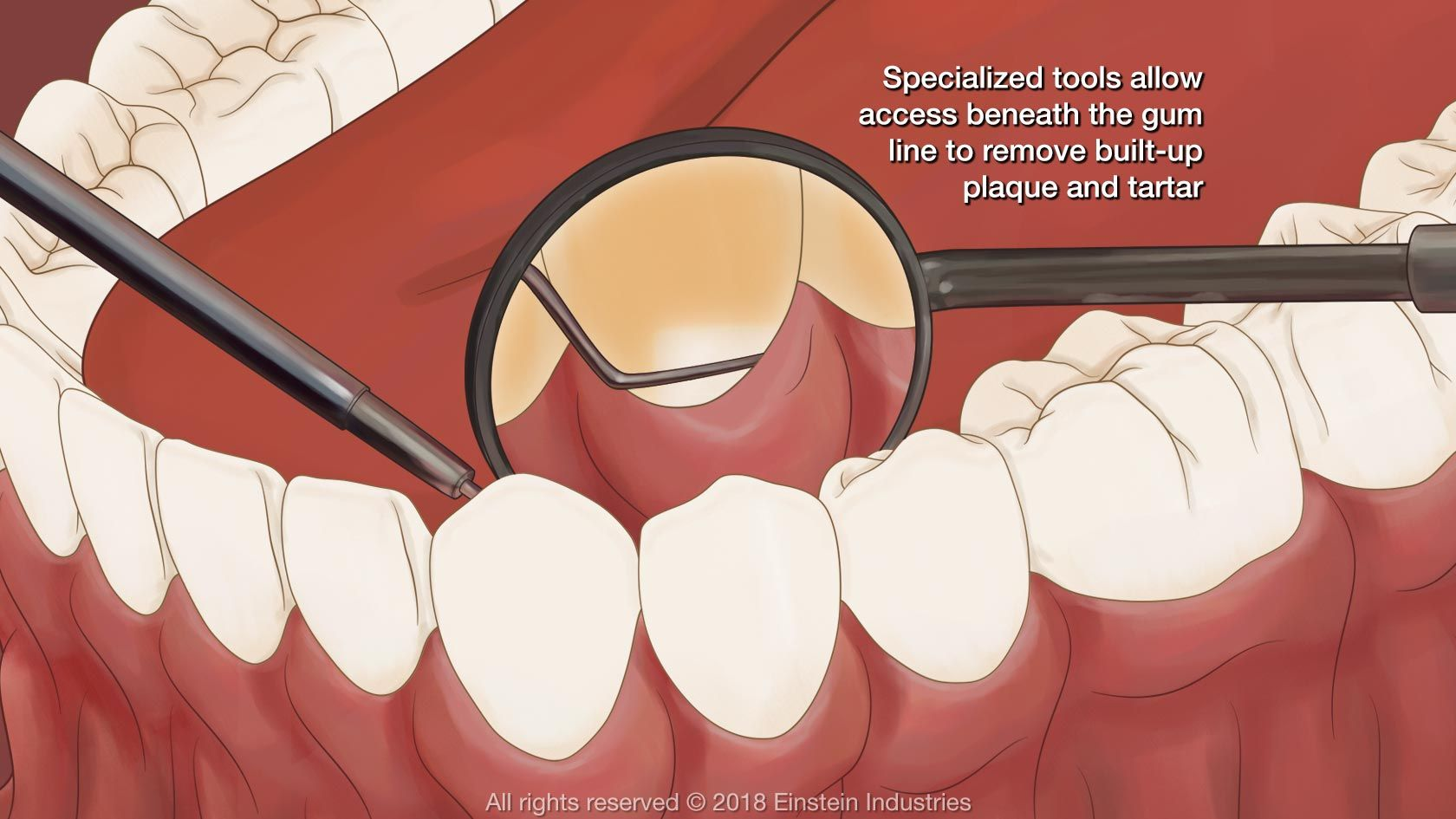 Illustration of dental mirror and teeth