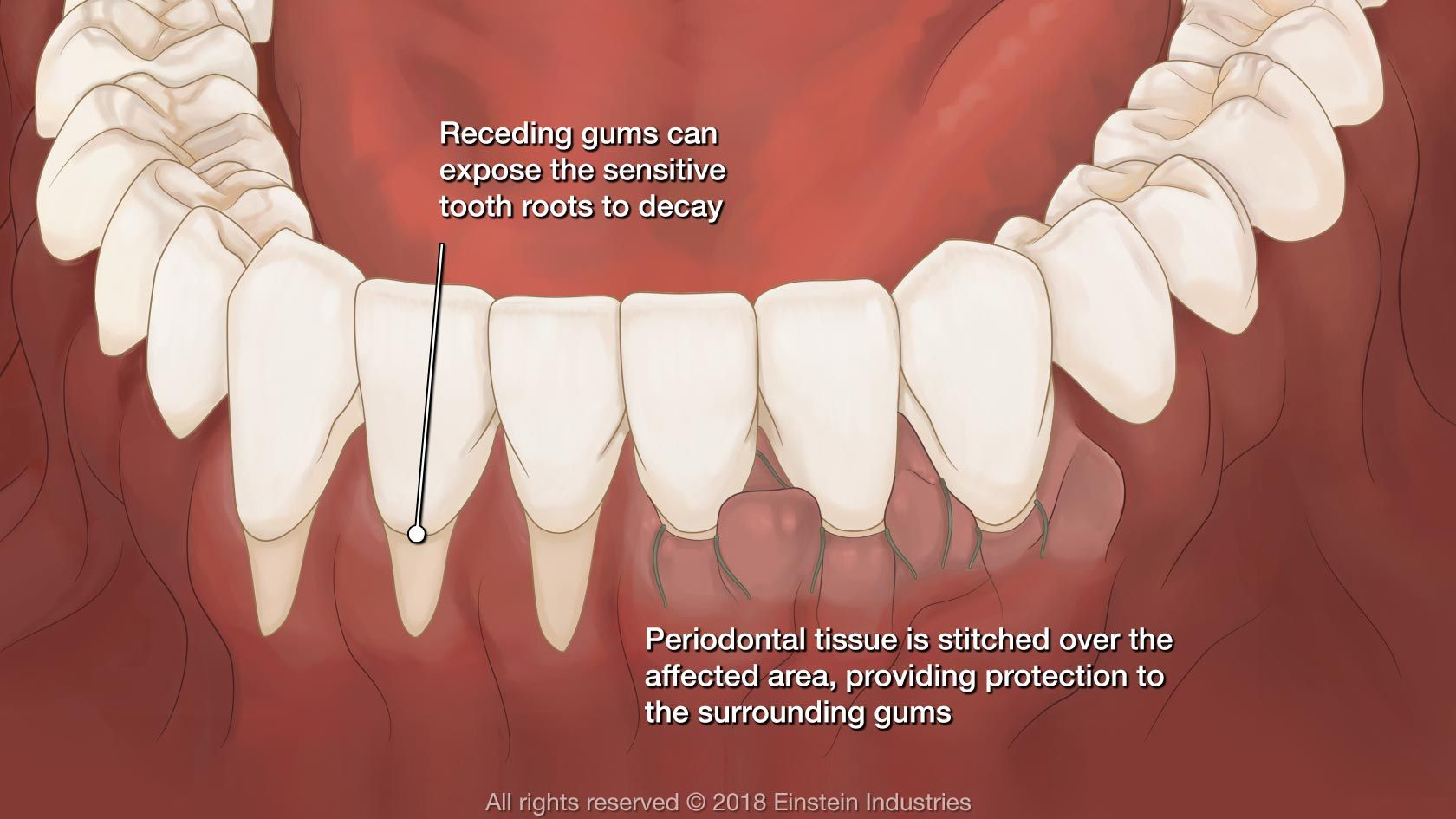 Gum graft illustration