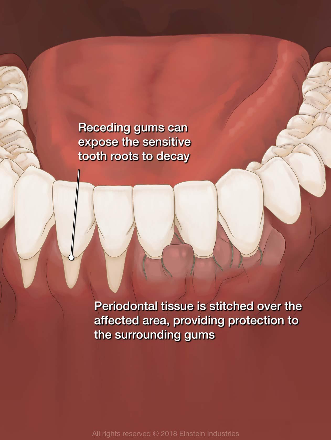 Gum graft illustration