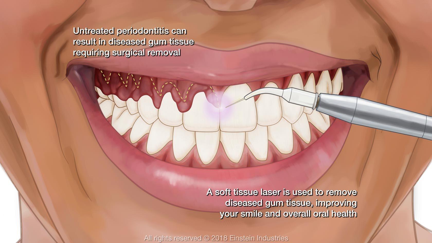 Gum Contouring | Dr. Jasmine Naderi