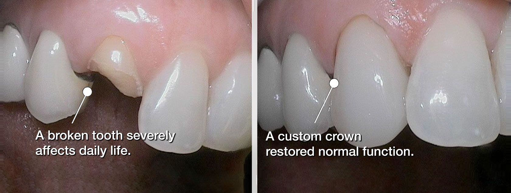 Before and after dental crown