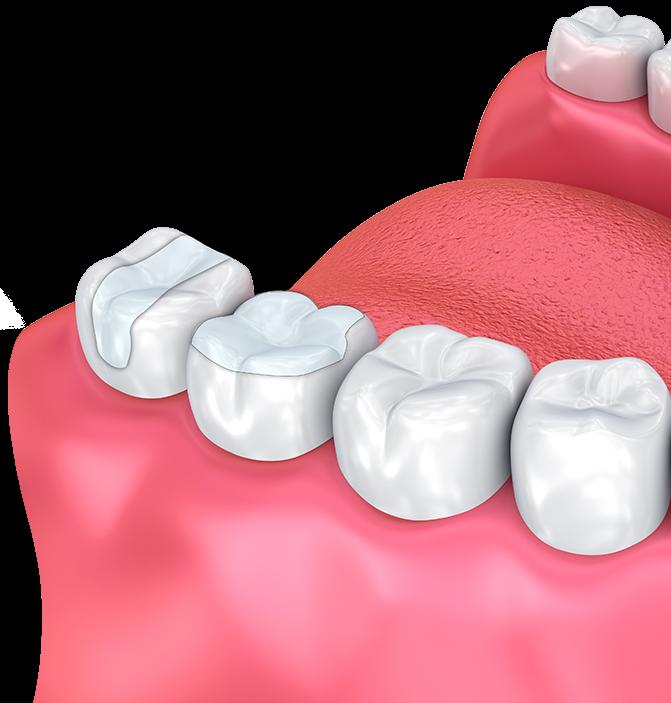 Illustration of back molars shows an onlay