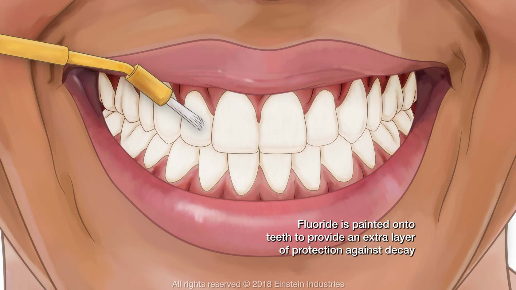Illustration of fluoride gel as it is applied to smile
