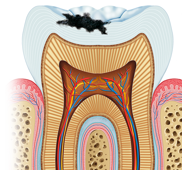 Illustration shows cross section of tooth with a cavity on top