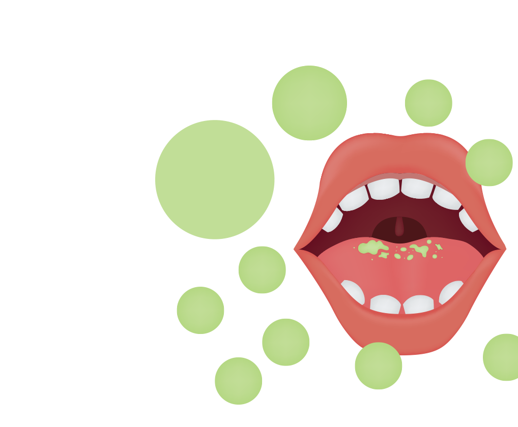 Graphic of mouth with green spots on tongue and in air