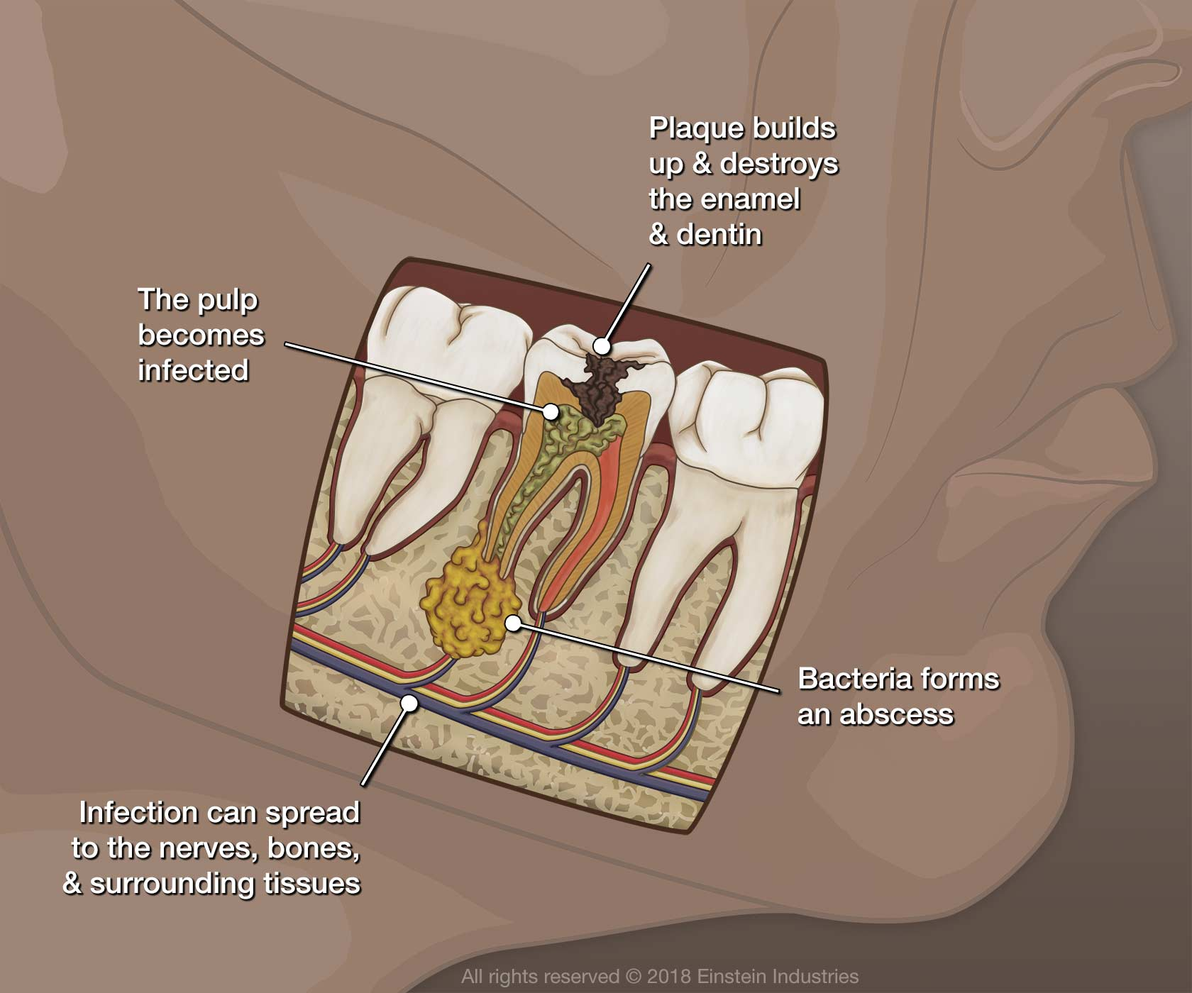 illustration of tooth infection