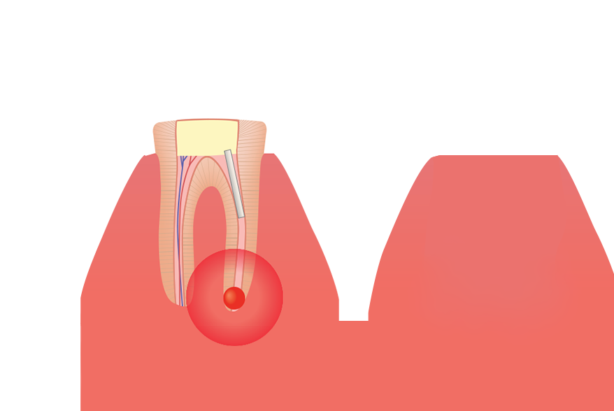 Illustration of failed root canal