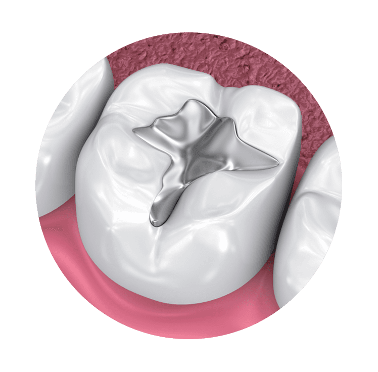 tooth with amalgam filling