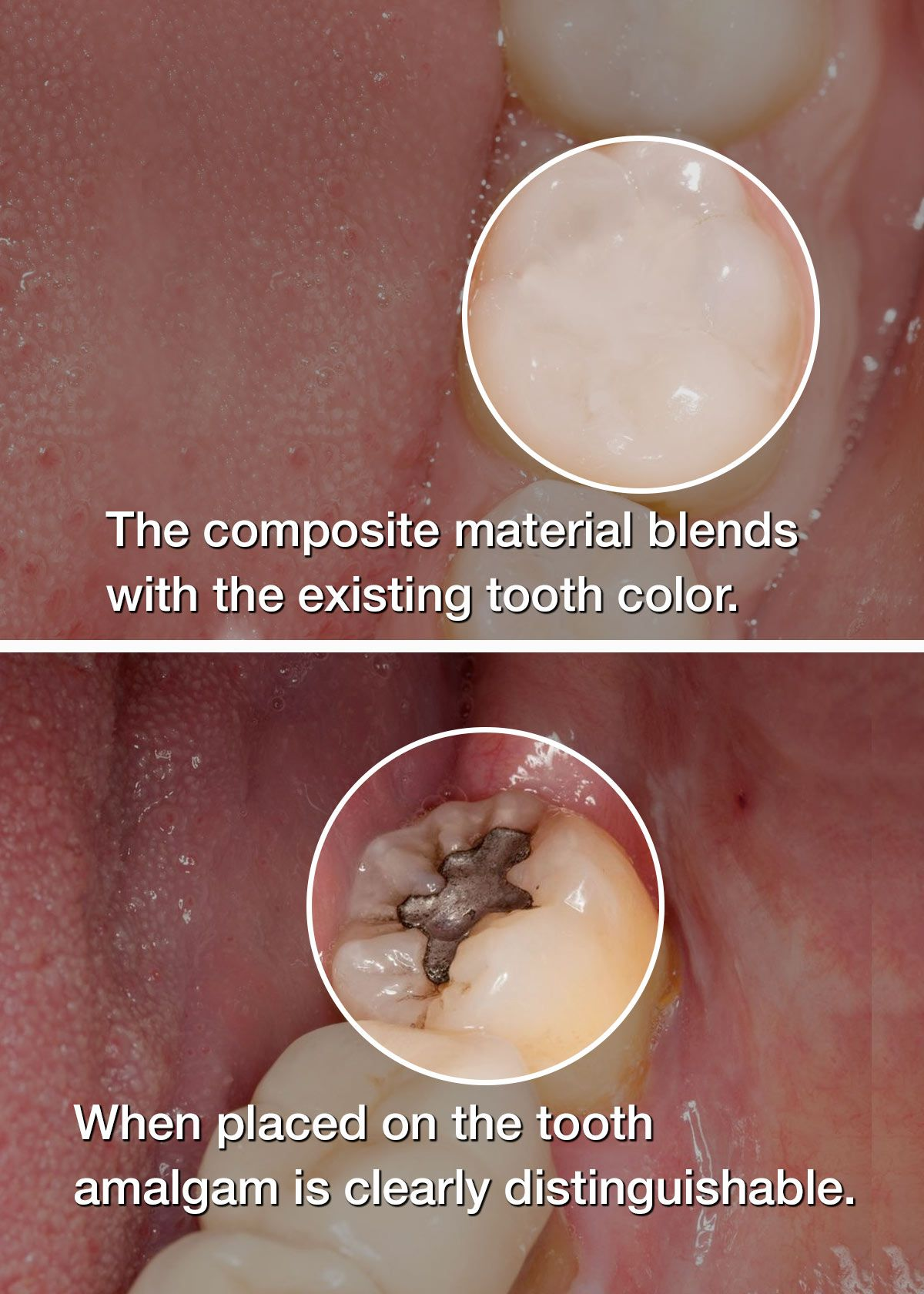 composite vs amalgam filling