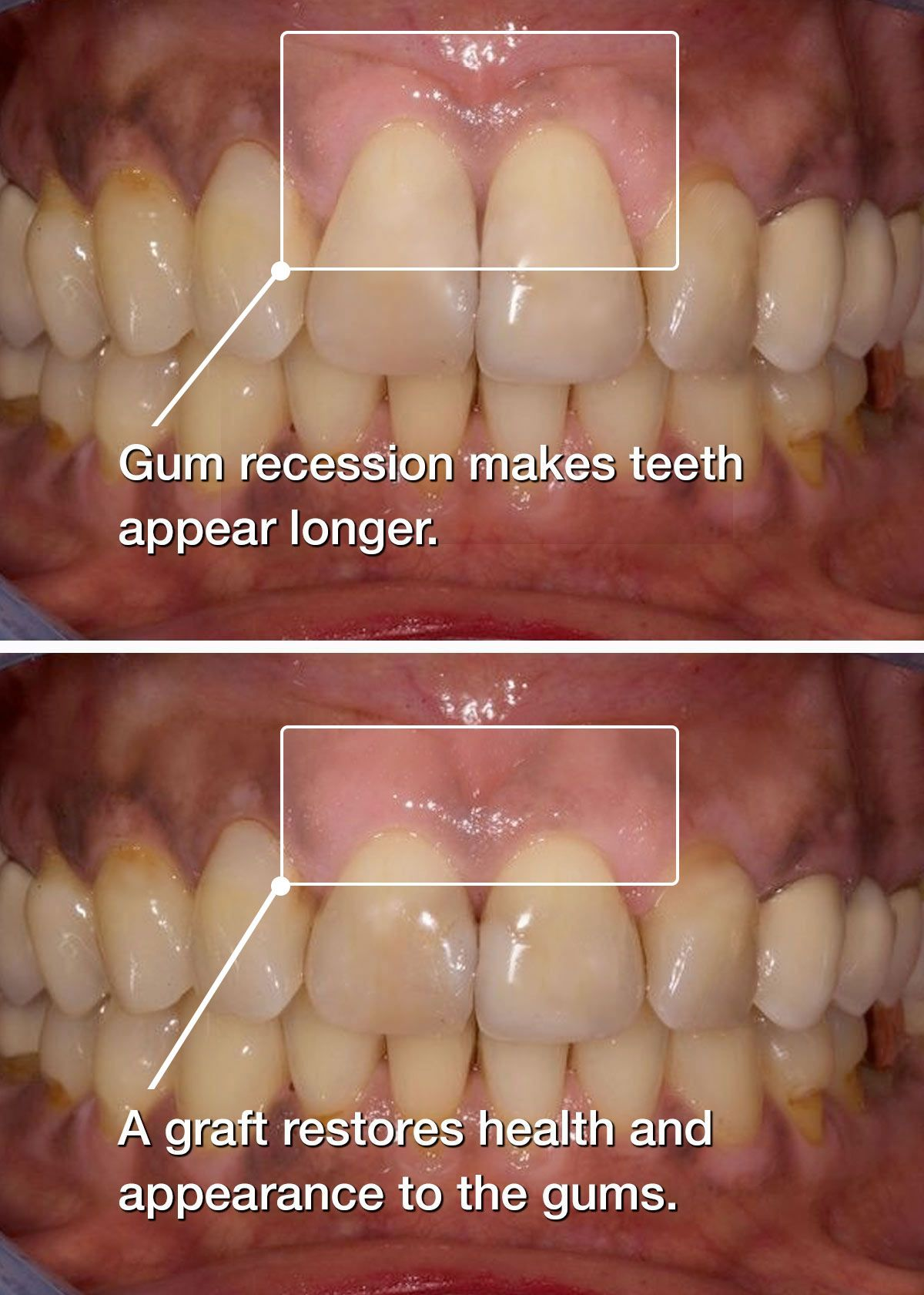 Before and after gum grafting