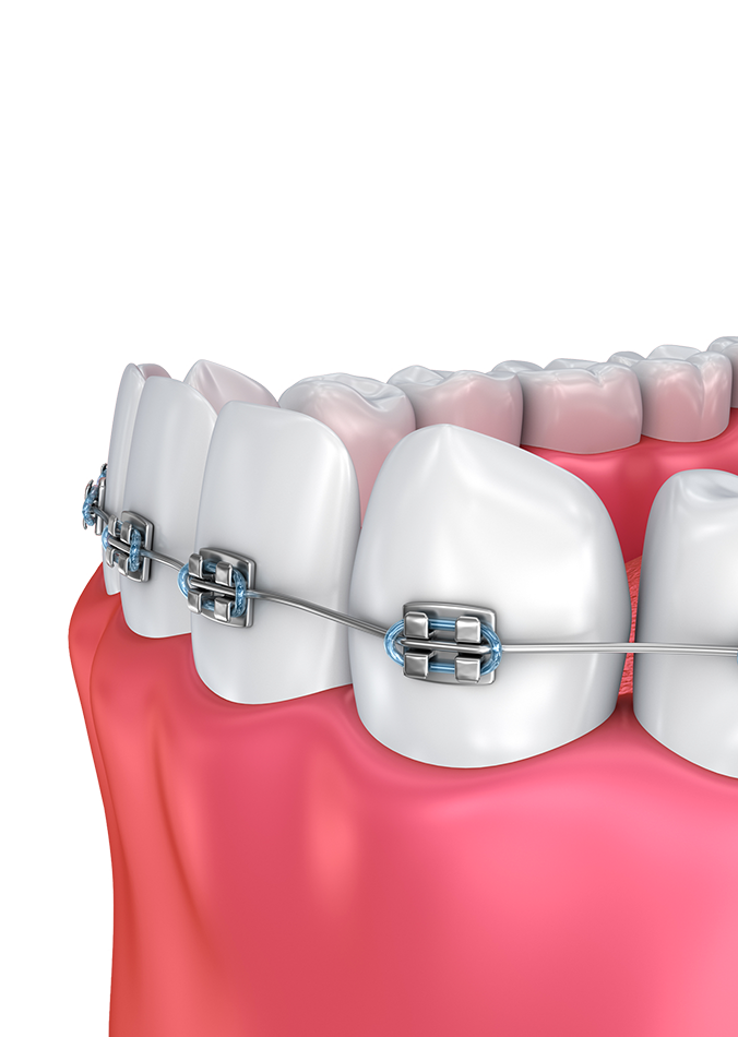 Illustration of braces