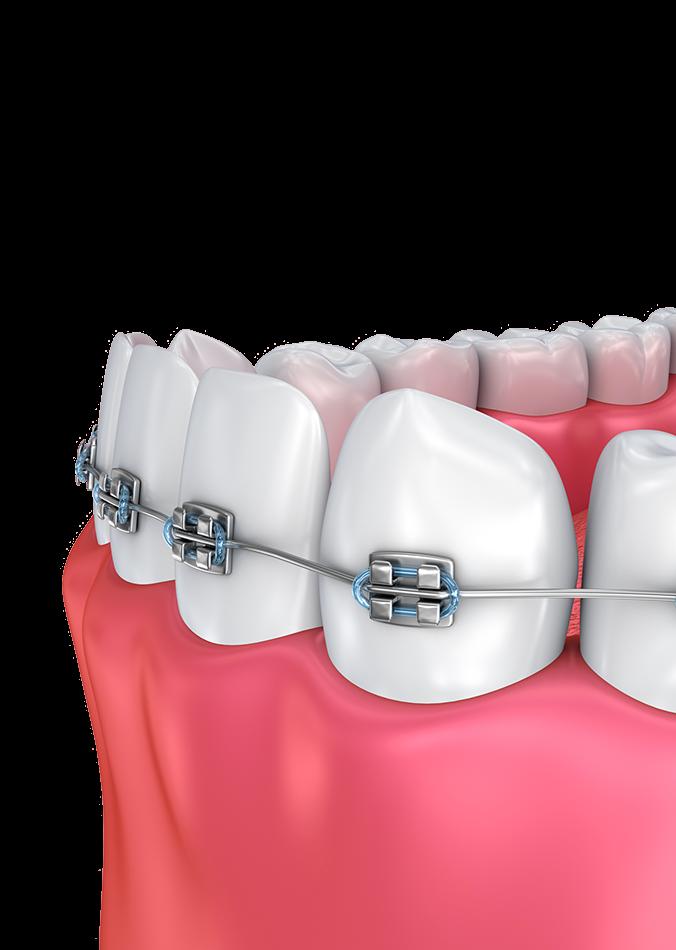 Orthodontics - Albuquerque, NM - Haltom Orthodontics
