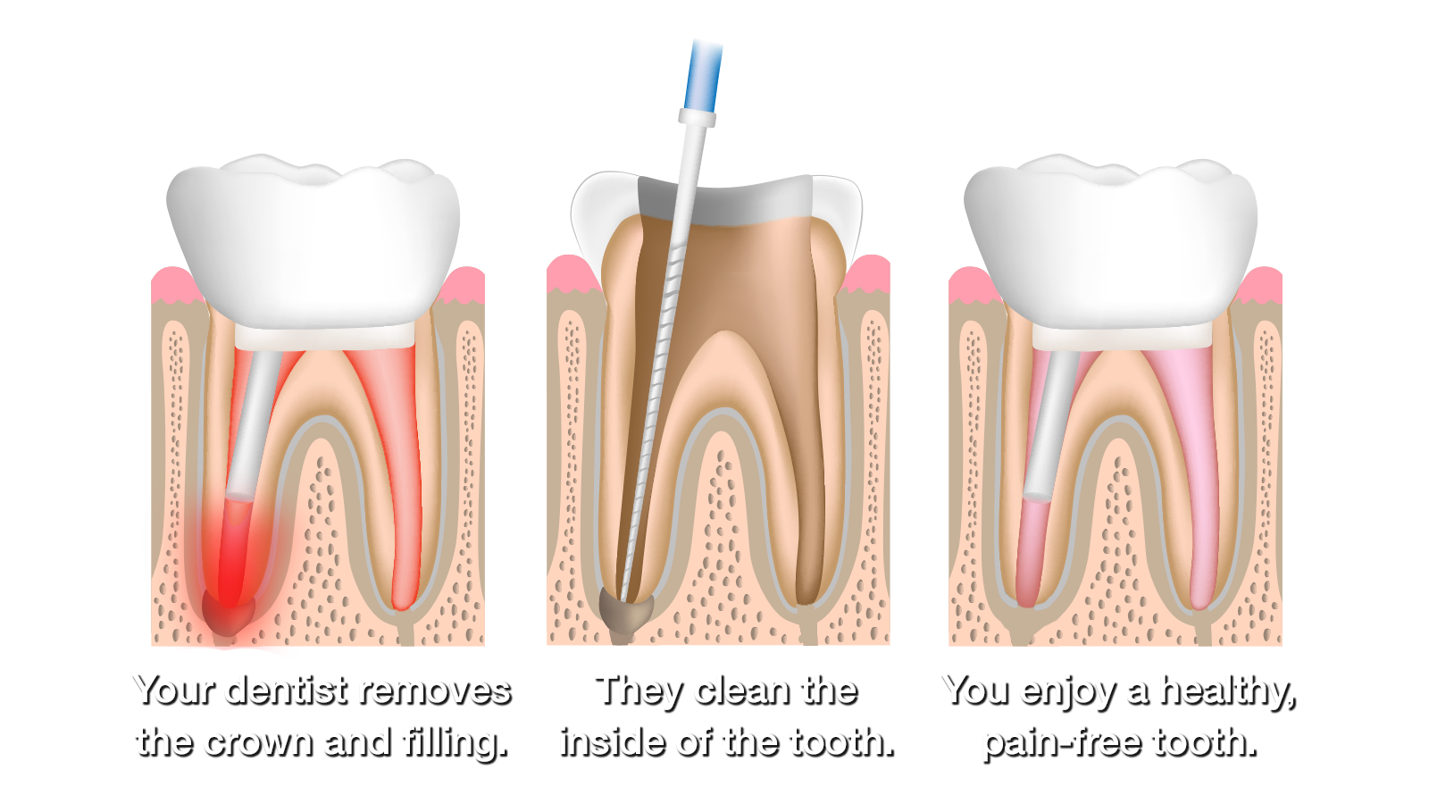Illustration of root canal retreatment