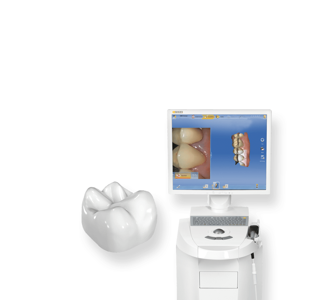 CEREC machine and digital rendition of crown