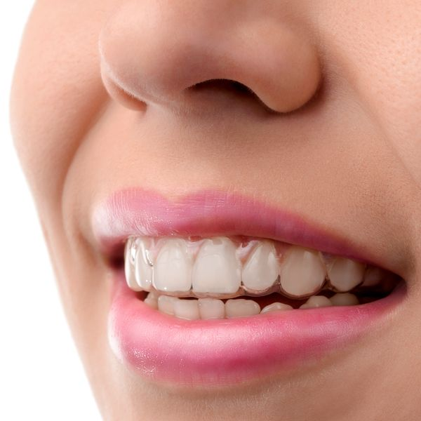 Teeth with clear aligners