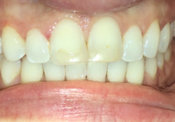 Patient smile before veneer treatment