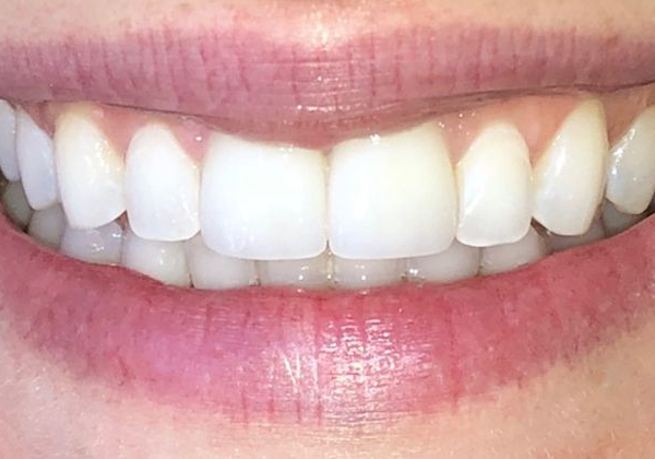 Patient smile after veneer treatment