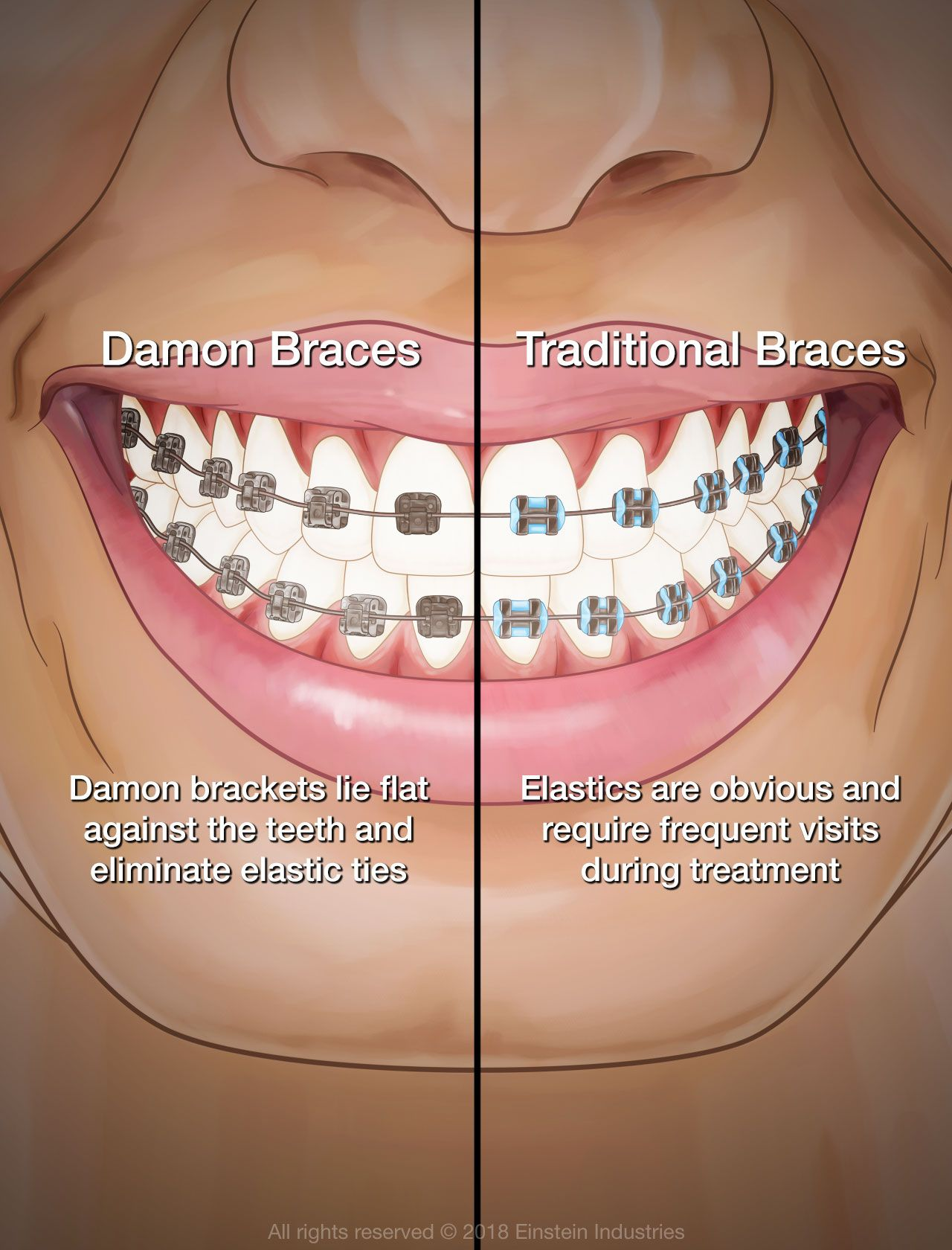 Comparison of traditional and Damon braces