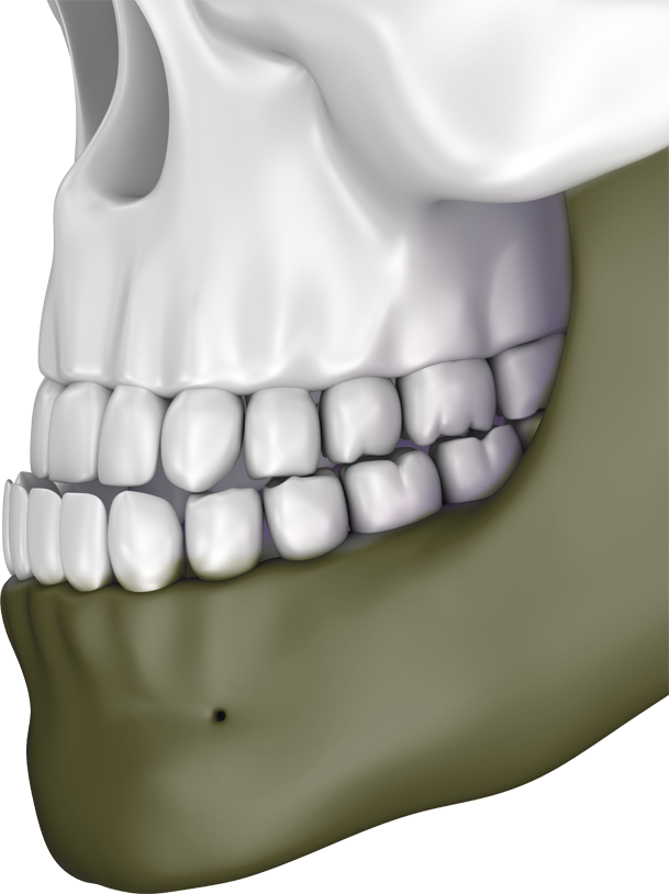 Illustration of skull with underbite