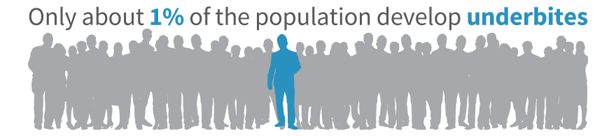 1% of the population develops an underbite