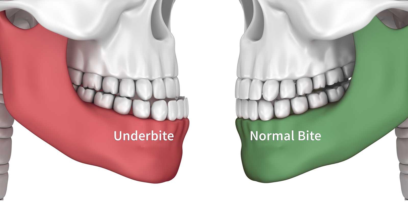 Comparison of normal bite and underbite