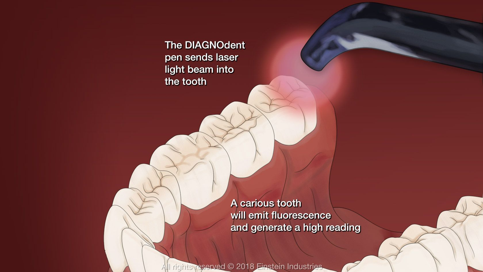 DIAGNOdent laser assessing tooth health