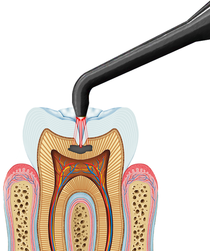 Illustration of tooth and DIAGNOdent laser