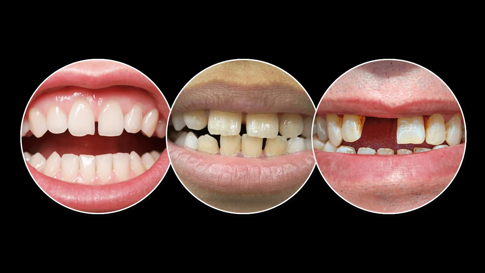 Three types of gaps between teeth