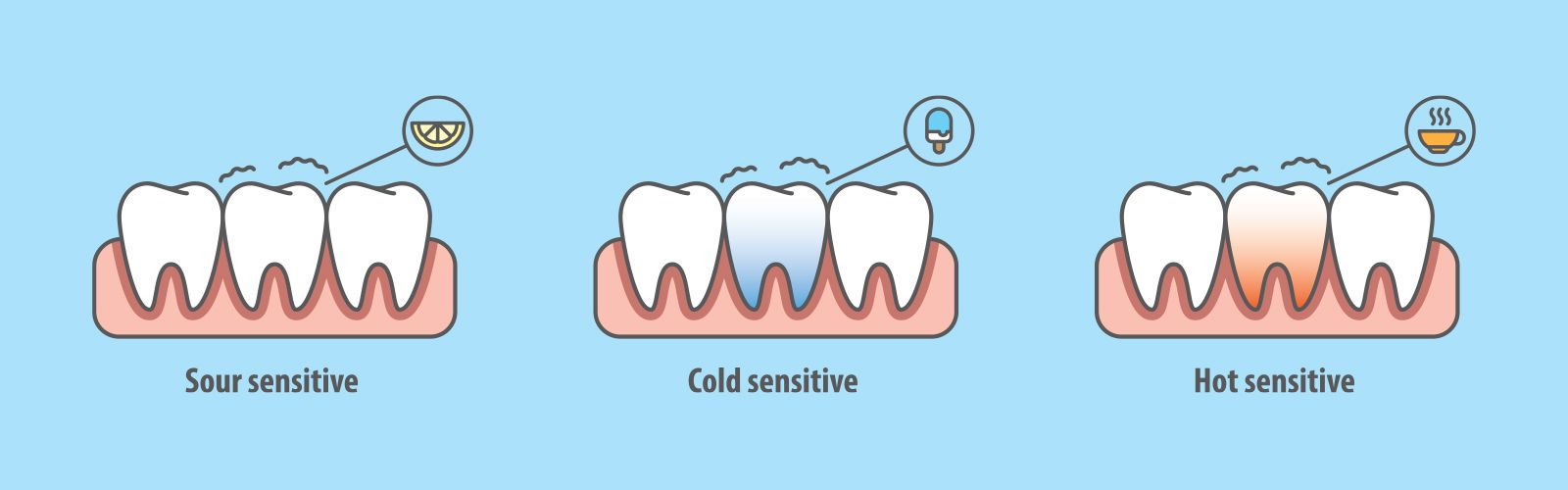 Illustration of sensitive teeth and causes