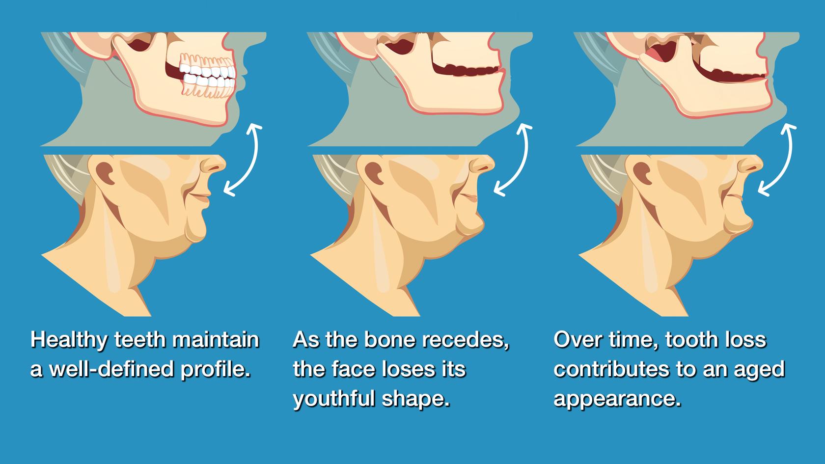 Illustration of jawbone atrophy