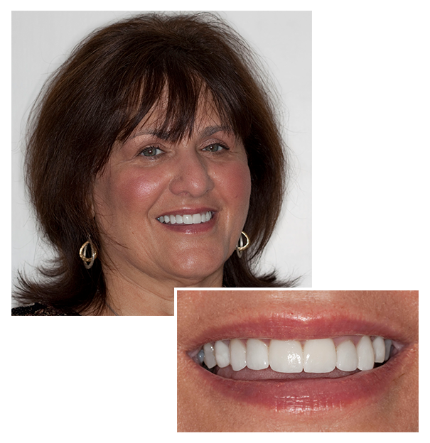 Before and after: patient smile