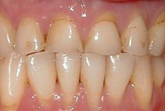 Image of teeth before treatment