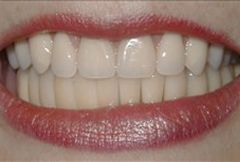 Smile with lower arch dentures