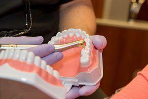 dental assistant explaining model of full dental arch