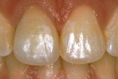 front teeth with crowns