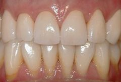 upper row of teeth with dental crowns