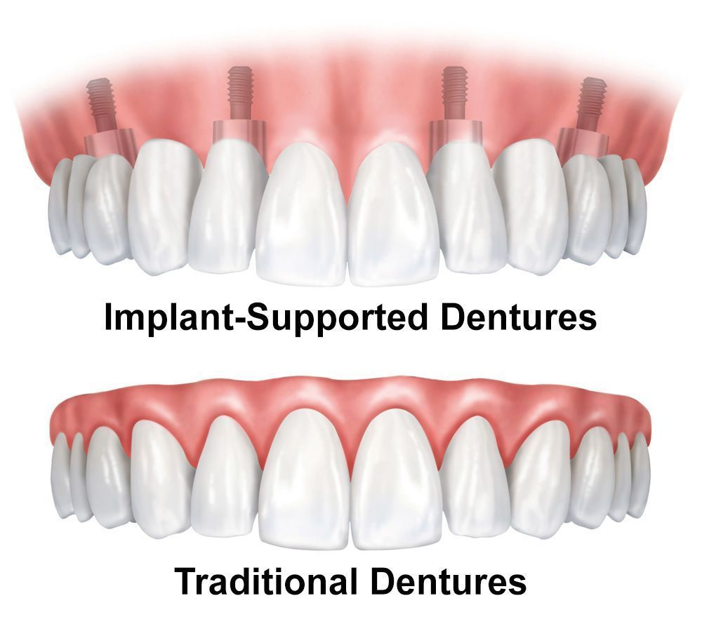 traditional vs. implant-supported dentures