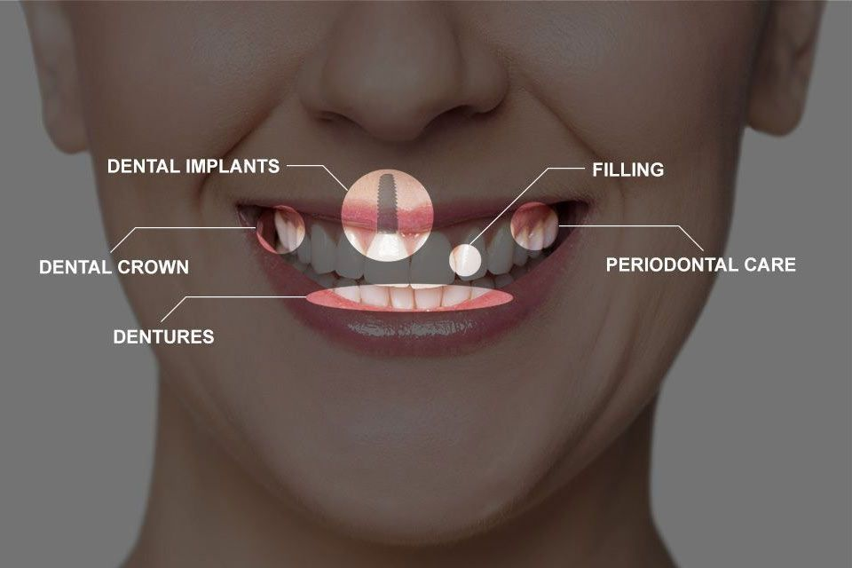 full mouth construction treatments