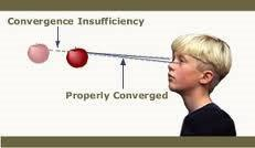 A child suffering convergence insufficiency versus properly converged vision.